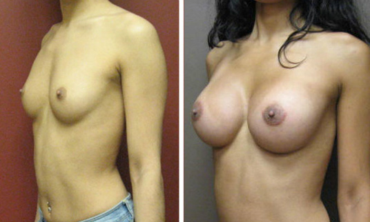 Before and After Photo: Kelly Wingham had an awesome boob job, you can just tell by looking at the after photo.
