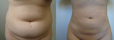 Before and After Photo: Nita Cousineau has liposuction on the tummy or stomach and love handles.