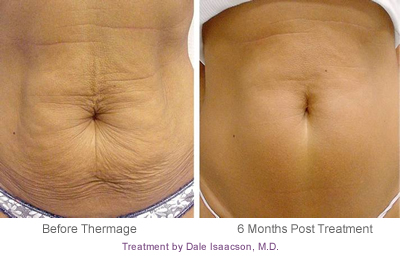 Abdomen Sagging Skin Before and After Treatment #5