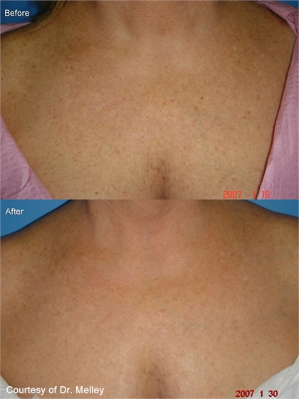 Before and After Photo: Fractional Ablative Laser (Ablation) Performed on Woman's Chest