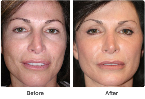 Before and After Photo: Ablation for Facial Rejuvenation