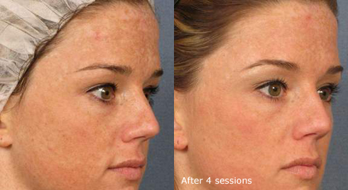 Before and After Photo: Fractional Ablative Laser (Ablation) Done on Womans Face