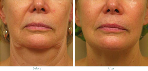Before and After Photo: Ablation on Womans Face