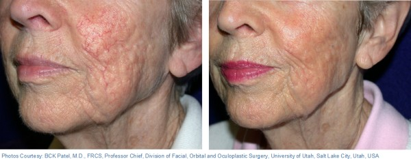 Before and After Photo: Ablative Laser Done on Elderly Ladies Cheeks