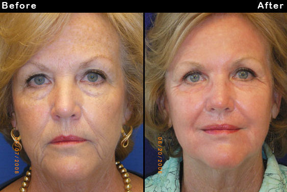 Before and After Photo: Ablation Laser Treatment Done on Womans Whole Face