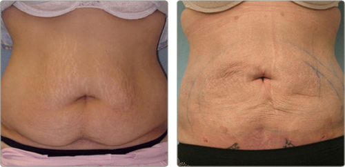 Before and After Photo: Accent Laser of the Abdomen or Tummy