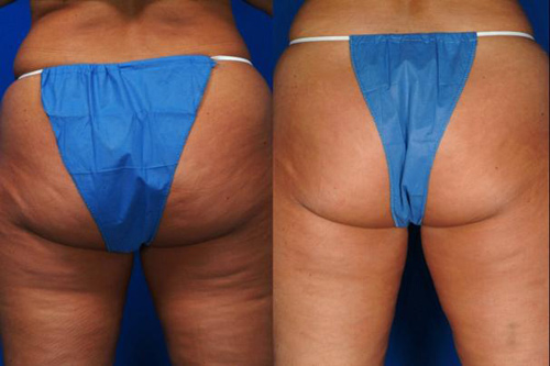 Before and After Photo: Accent Laser for Back of Legs and Buttocks Cellulite