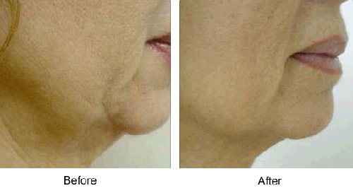 Before and After Photo: Accent Laser for Facial Jowls (Cheeks)