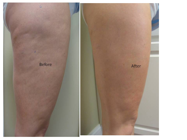 Before and After Photo: Accent Laser for Leg Cellulite