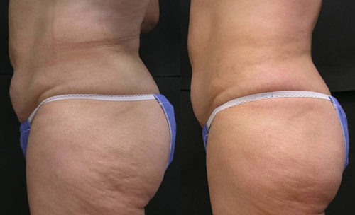 Before and After Photo: Accent Laser for the Outer Thighs and Love Handles
