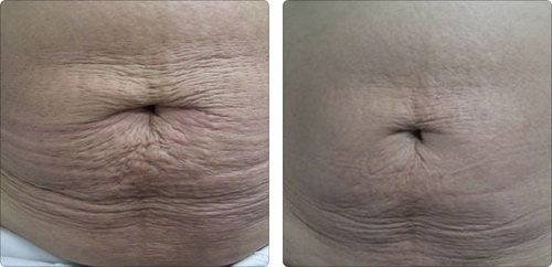 Before and After Photo: Accent Laser of the Stomach (Tummy)