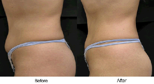 Before and After Photo: Accent Laser for Love Handles and Stomach (Tummy)