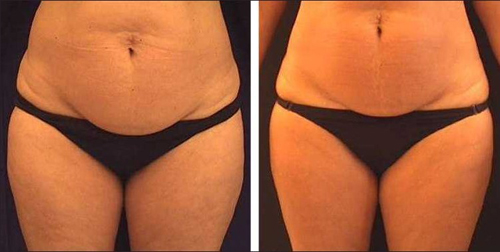 Before and After Photo: Accent Laser of the Stomach (Guts) and Love Handles