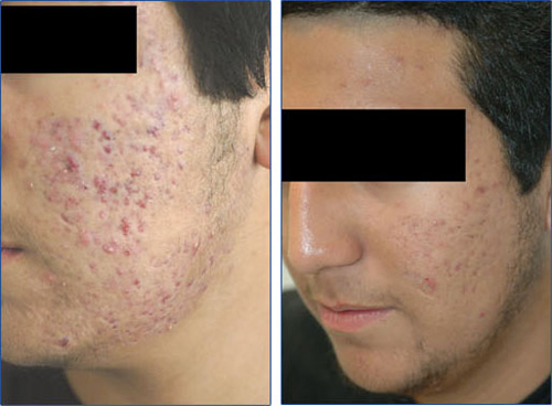 Before and After Photo: Male with Acne Scarring of the Cheeks