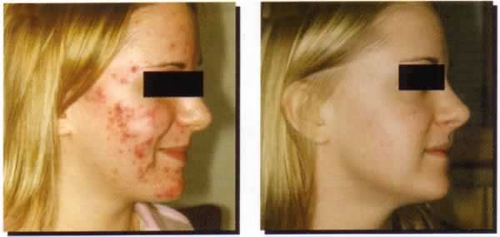 Before and After Photo: Chemical Peel for Acne Scarring