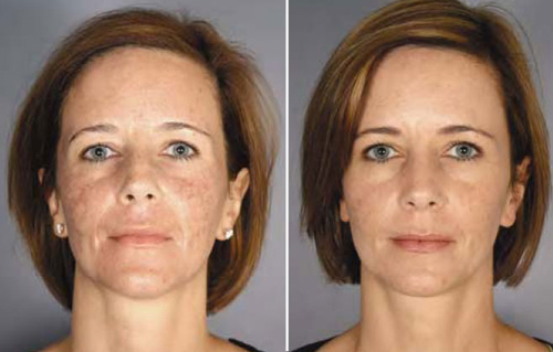 Before and After Photo: AciveFX on the Face