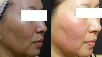 Before and After Photo: ActiveFX for Skin Blemishes