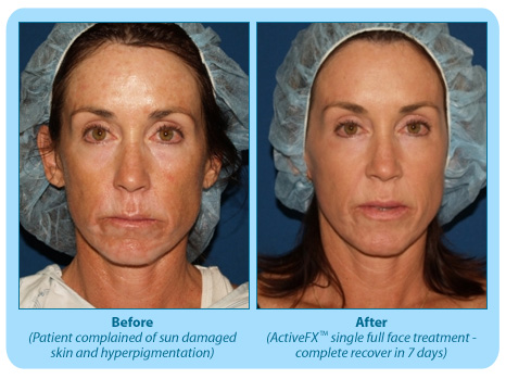 Before and After Photo: ActiveFX for Blotchy Skin Types