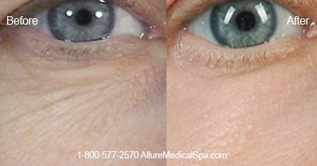 Before and After Photo: ActiveFX Laser Under the Lower Eyelids for Wrinkles