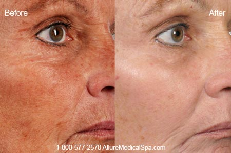 Before and After Photo: ActiveFX for Sun Damaged Skin and Age Spots