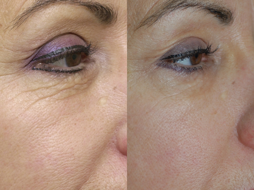 Affirm Laser Before and After Wrinkle Revision #1