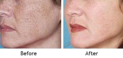 Age Spots Removed From the Cheeks Before and After Photo #8