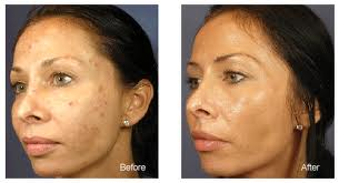 Age Spots Removed from the Face Before and After Photo #6