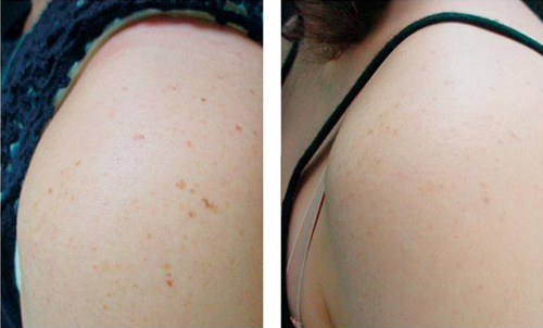 Age Spots Removed off of the Shoulder Before and After #5