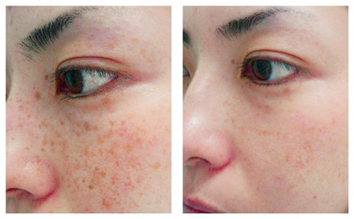 Age Spots Treatment Before and After Photo #1