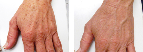 Ages Spots Removed From the Hands Before and After Photo #3