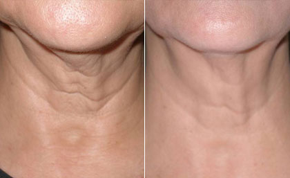 Aging Skin Before and After Neck Lift #1