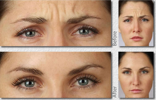 Aging Skin Before and After Botox #4