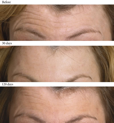 Aging Skin Before and After Forehead Lines #5