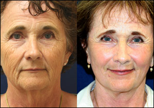 Aging Skin Before and After Laser Resurfacing #10