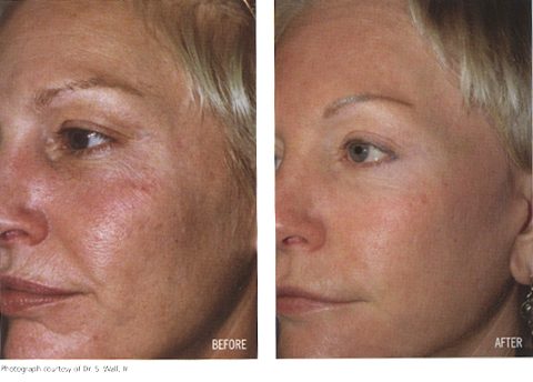 Aging Skin Before and After Sun Damage #3