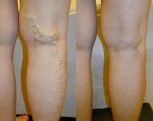 Ambulatory Phlebectomy of Leg Before and After Photo #7