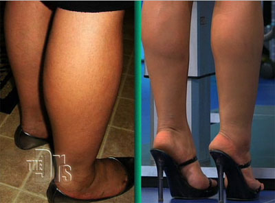 Ankle Leg Liposuction Before and After Picture #3