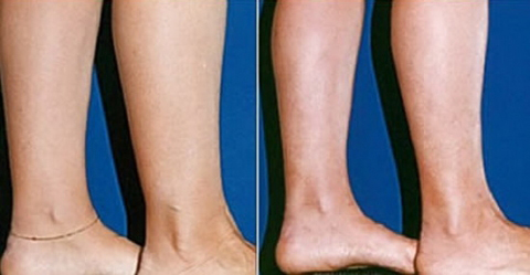 Ankle Liposuction Before and After Surgery #1