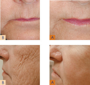 Anti-Age Fix with Affirm Laser Before and After Photo #3