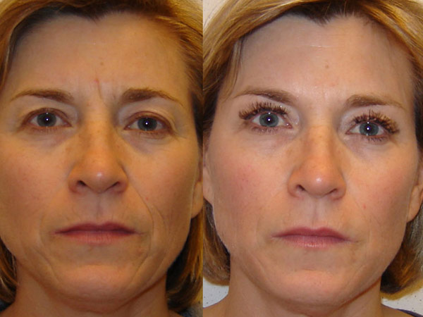 Anti-wrinkle Injections Before and After #2