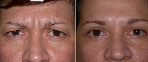 Anti-wrinkle Injections #9 Before and After Photo