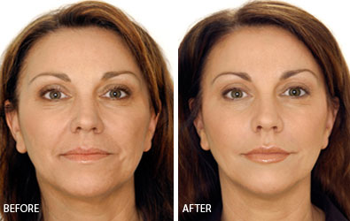 Anti-wrinkle Injections Before and After #1
