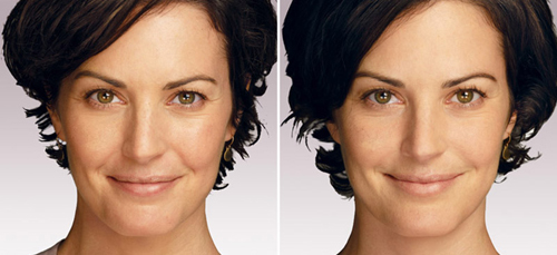 Aquamid Injected Woman Before and After #9