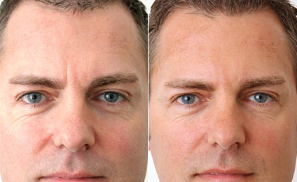 Aquamid Injections Before and After #7