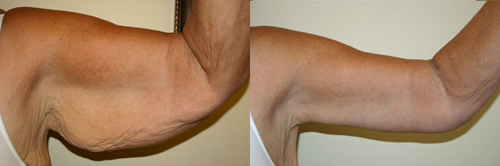 Before and After Photo: Arm Liposuction #2