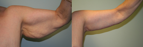 Before and After Photo: Arm Liposuction #3