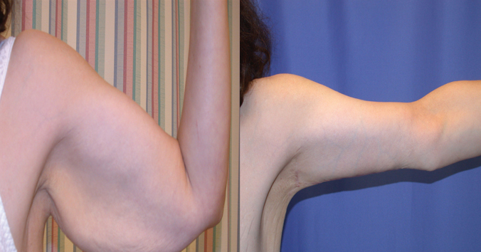 Before and After Photo: Arm Liposuction #4