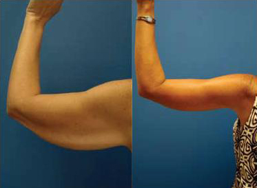 Before and After Photo: Arm Liposuction #5