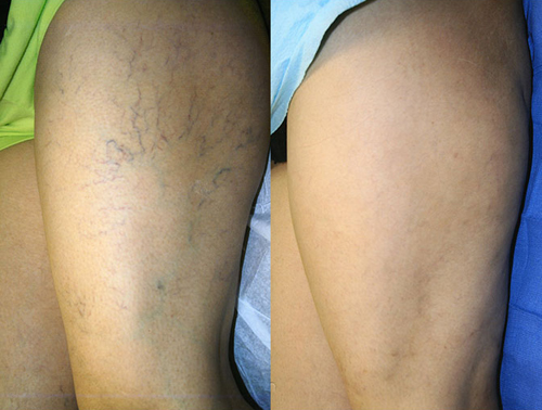 Asclera Injections Before and After on Leg #4
