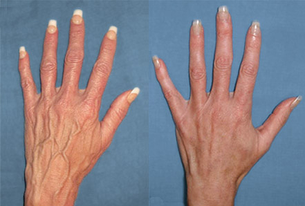 Asclera on Hands Before and After Picture #7